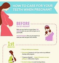 How to Care For Your Teeth When Pregnant