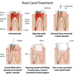 Root Canal Treatment Milton - Oasis Dental Milton